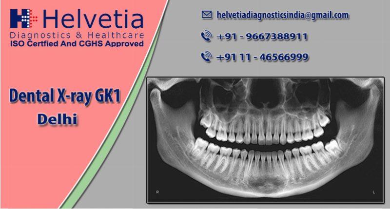 Dental X-Ray GK 1 Delhi